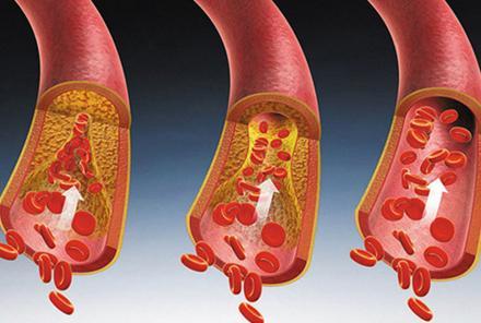 这4个信号暗示同一件事:你的血脂已经很高了