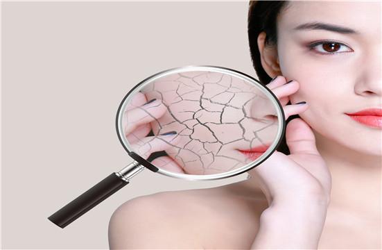 去红血丝的护肤品有效么?哪个阶段红血丝容易去除