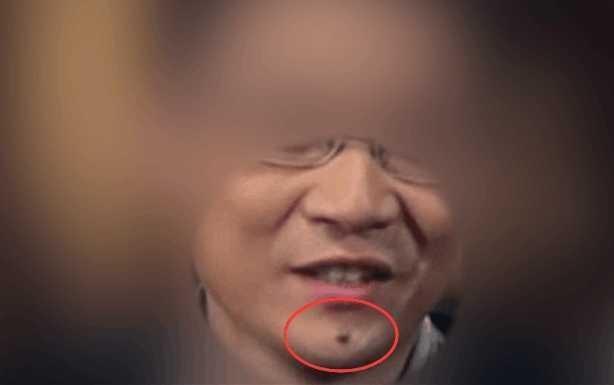 脚心位置长痣为痣相学中最罕见的