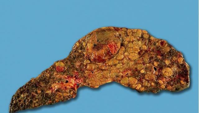 2大症状小心肝脏在变硬变形,每天吃一顿它,解毒保肝断癌