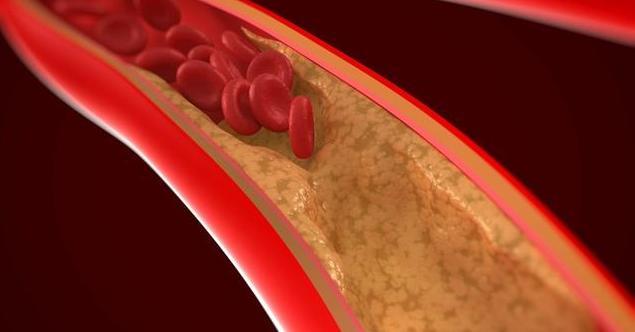 """血管里面都是""""油"""",记住3个食疗法,胆固醇降得又快又简单"""