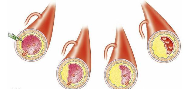 体检检出甘油三酯超标,高血脂症无疑,降血脂这2招又快又狠