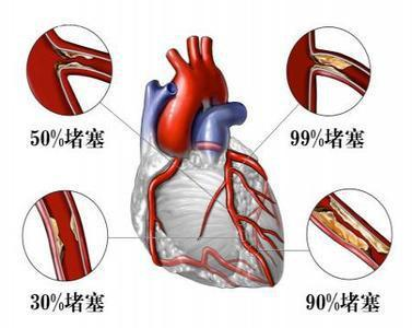 身体这里每天都疼3~5分钟,说明冠心病恶化,血管痉挛致心绞痛