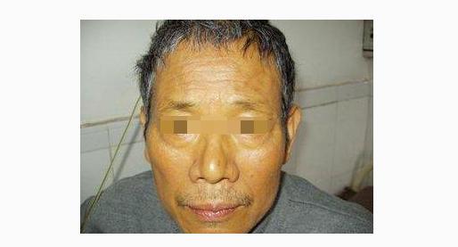 整张脸都在说明你有肝病,3大症状是肝硬化上门,断肝病2招都嫌多