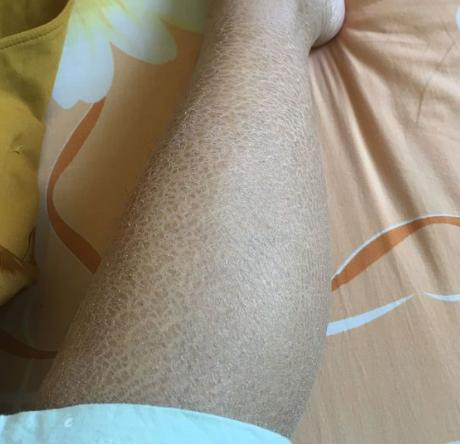 鱼鳞状皮肤_鱼鳞皮肤到底是什么?症状如何