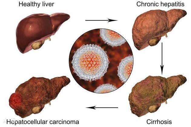 肚子出现2大症状暗示肝脏在扭曲,收拾肝病灭掉肝硬化1招就够用