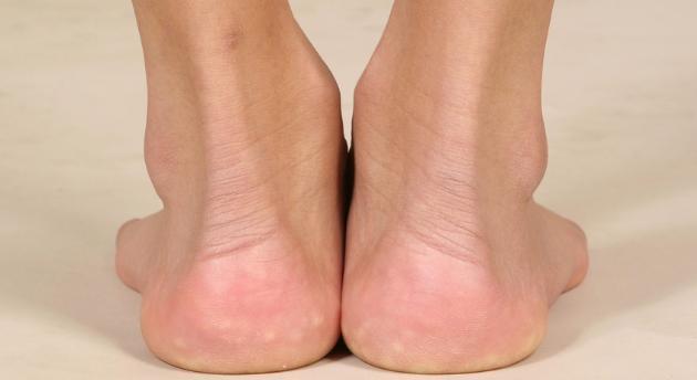 肾不好,手脚早有信号,把肾养得健康红润用1招就够