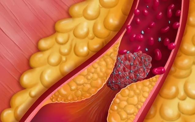 """血管有""""油"""",动脉硬化迟早夺命,3大方法能刮油去脂、疏通堵塞"""