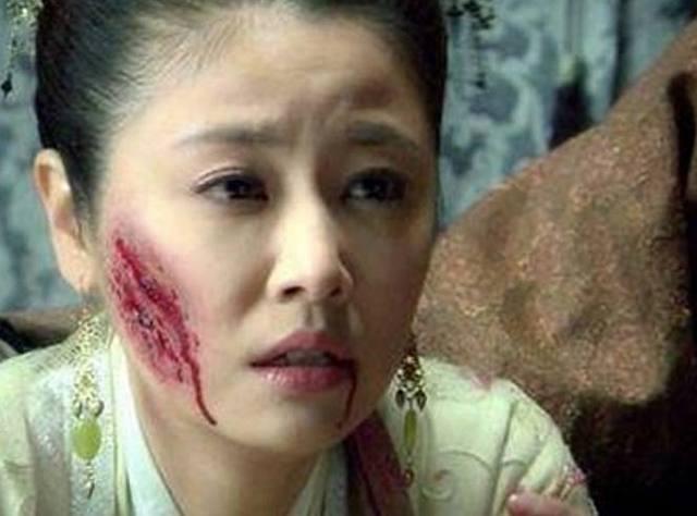女星毁容照,赵丽颖让人心疼,她却成心理阴影!