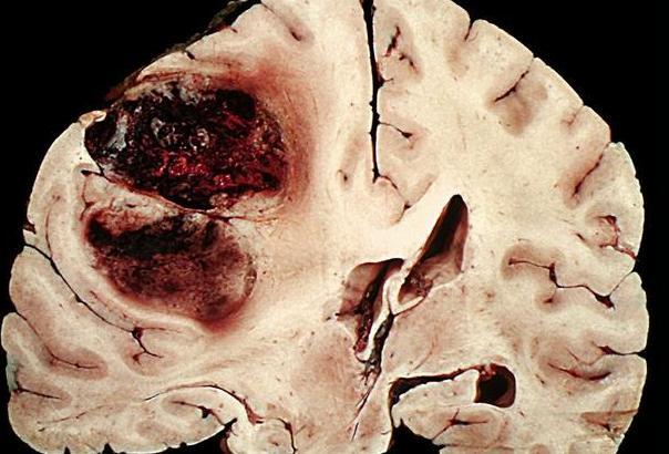 冬季来临小心脑梗夺命,清脑断梗吃着就能收拾掉、恢复正常
