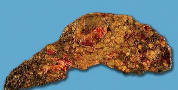 肝硬化最怕3大食物,每天坚持一顿就能灭肝病