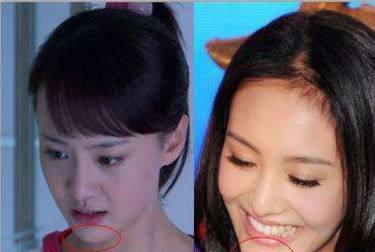 最丑女演员赵丽颖_赵丽颖,张娜拉和郑爽丑照对比,他们竟说赵丽颖最丑!