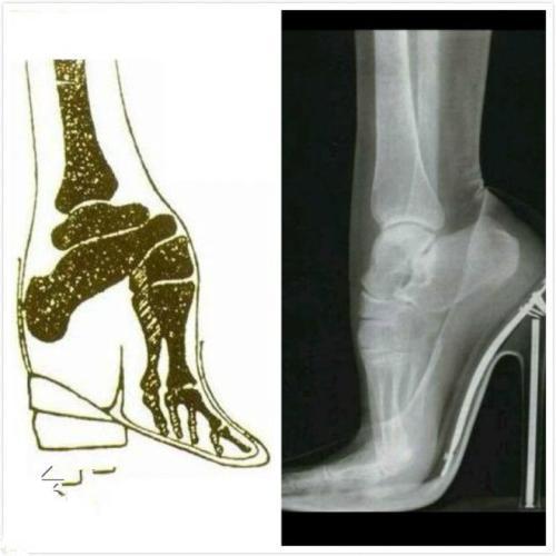 古代女鞋简笔画