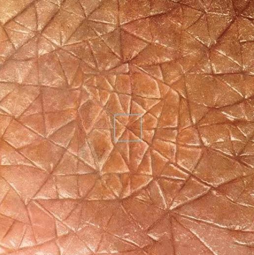 人类皮肤放大亿万倍后, 呈现出的形态, 超出你的想象