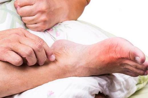 痛风专家:尿酸升高有痛风,做到1低1多快速排掉尿酸