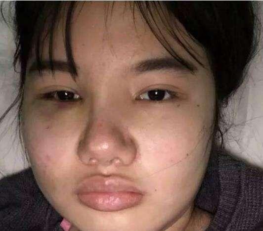 最丑女演员赵丽颖_四位丑女花巨资整成杨幂, 赵丽颖, 热巴和baby, 唯独她亏大了!