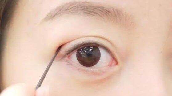 """经常用""""双眼皮贴""""就能变成双眼皮吗?"""