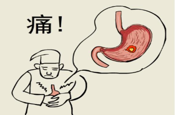 胃的黏膜分层结构图