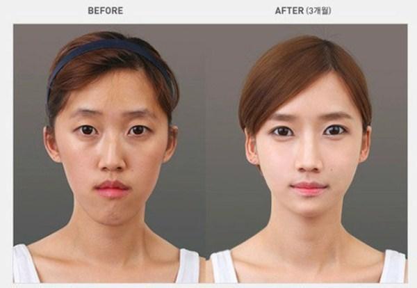 实拍:韩国人整容前后的对比照,丑男变帅男,丑女变大美女图片
