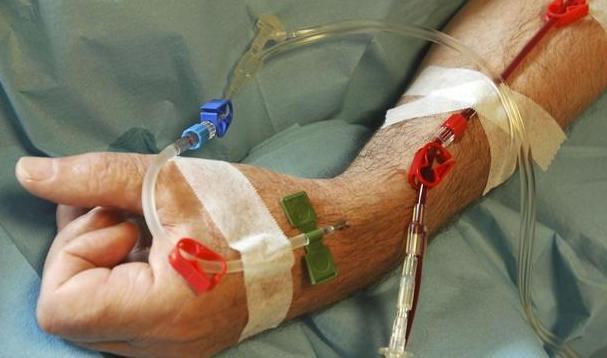 癌症放化疗效果这么好,为什么还是有很多患者过不了这一关?