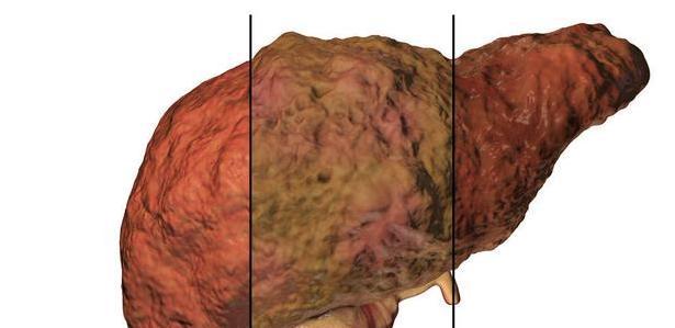 过年,这6类人小心脂肪肝上身,肝毒太满肝脏会报废
