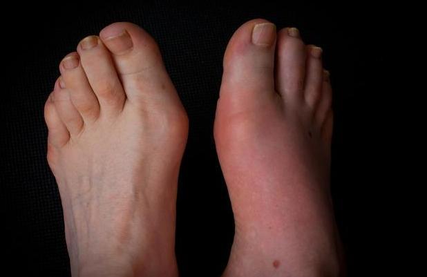 身体出现3个症状,说明已患有痛风,2种食物将尿酸一降不返