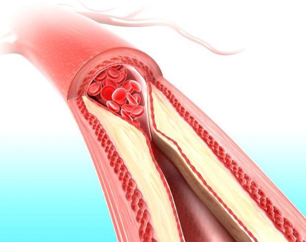 心脑血管医生:血脂再高也不怕,农村1种食物,吃着就能刮油降脂