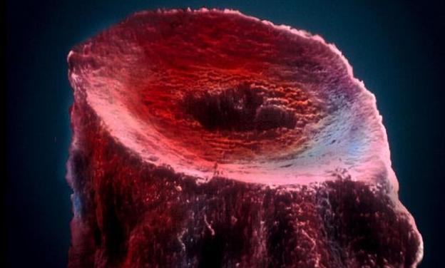 冬天桑叶这样用,10个颈动脉硬化通9个,血管不再嘎嘣脆