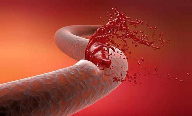 """有4大症状,要高度怀疑脑部血管已经堵了,需要给血管""""洗个澡"""""""