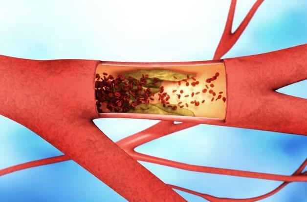 心血管內科醫生:有這種感覺,就是患上高血脂的第1個信號