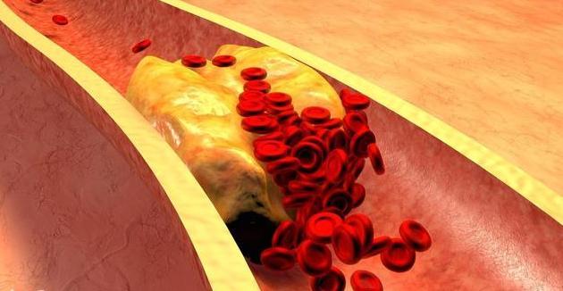 有高血脂的人血管里都是油,这2项救命指标亮红灯,易突发猝死