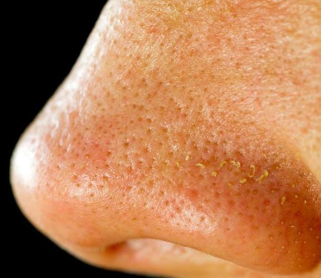 满脸毛孔,粗到随手一挤就有小虫状的东西出来,说明全脸都是毒