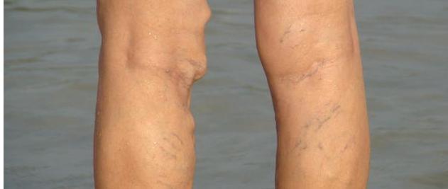 小腿出現3大癥狀,說明血管動脈硬化嚴重,不想雙腿報廢就看過來