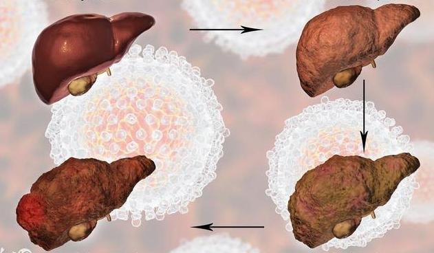 这4件超级伤肝的事你一定都做过,小心诱发肝病,赶紧戒掉