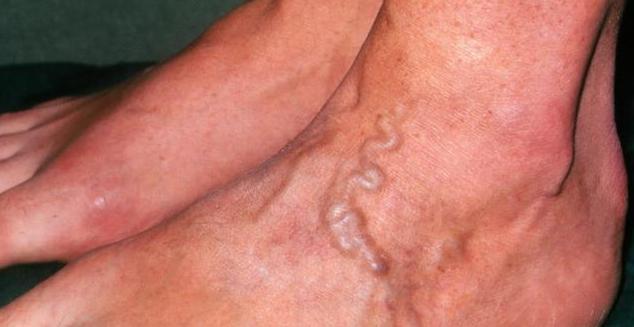小腿静脉曲张患者,2个时间要特别注意1件事,否则双腿会报废