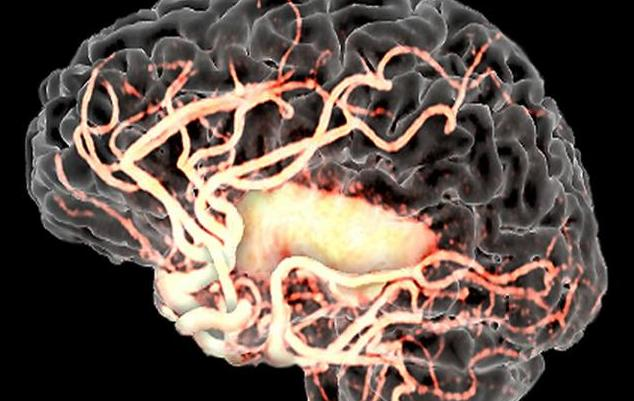 赶紧吃,4大食物通血管、灭脑梗,脑梗患者这样吃最有效
