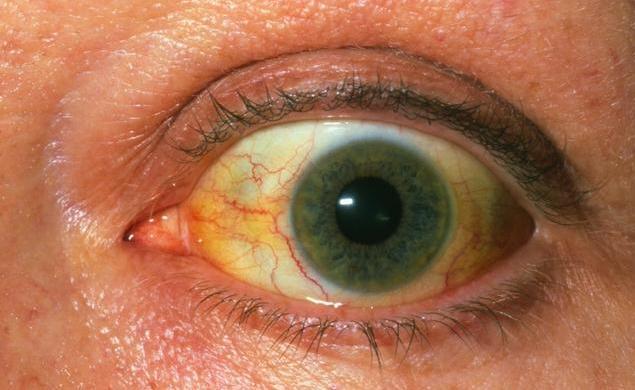 """这类的""""黄""""种人做不得,眼白都发黄了,小心肝炎肝硬化甚至肝癌"""