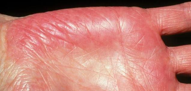 乙肝患者出现这3大症状,说明肝炎准备癌变,挽救肝脏这招要做
