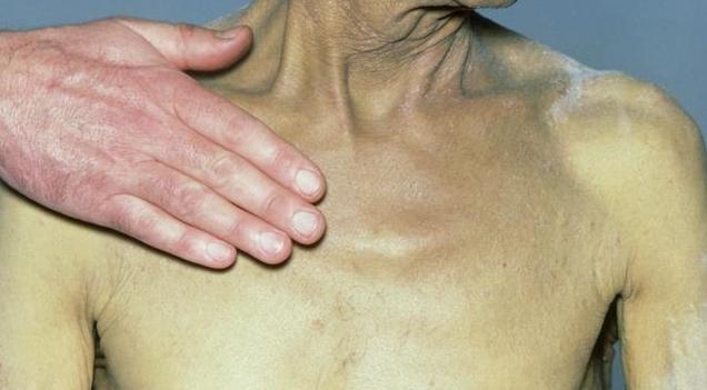 肝病发出的这个暗号,及时接收及早检查,能护肝保命