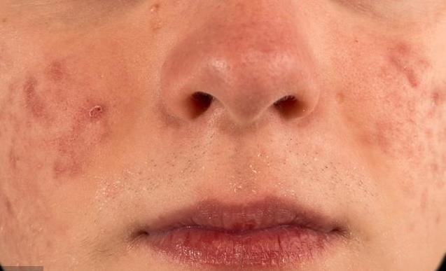 痤瘡一個接一個,布滿整臉都是因為它變少了,抹再多護膚品也沒用