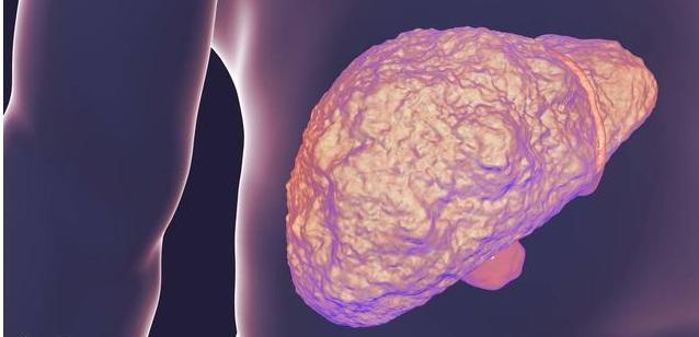 每天这样吃一顿,乙肝会消失,几年的老肝炎也都能恢复正常
