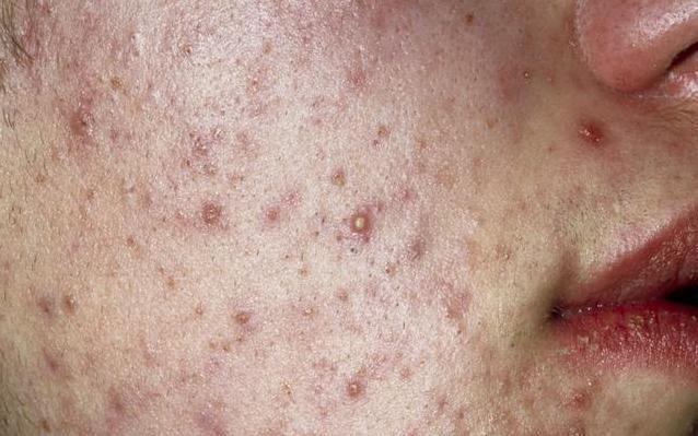 毛孔不粗、痘痘不长,你把体内的垃圾毒素排完,洗把脸也能出门