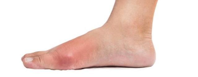 大脚趾疼痛,是痛风的首发症状,不以为意小心造成残疾