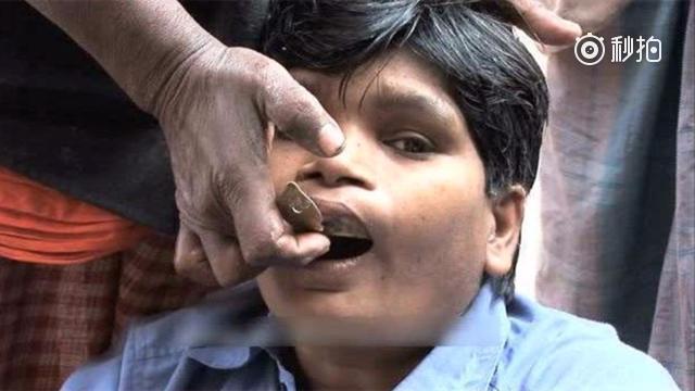 补牙太贵?来看看印度街边的廉价补牙,价格便宜,开挂不是吹的!