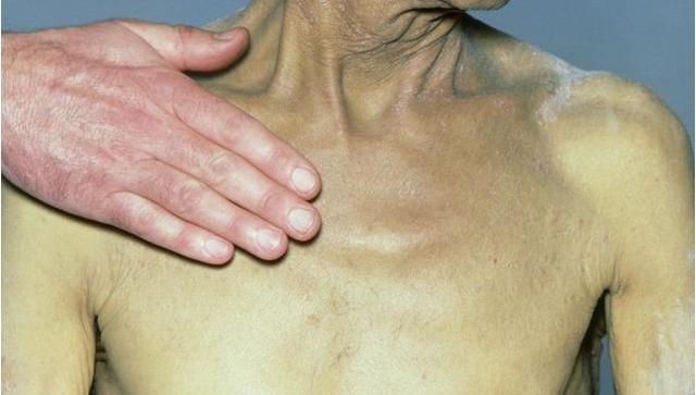 有这4大症状,要高度怀疑有没有肝硬化,出现1个肝都是不好的