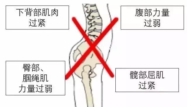 如何鉴别你的翘臀不是骨盆前倾,简直太形象了!