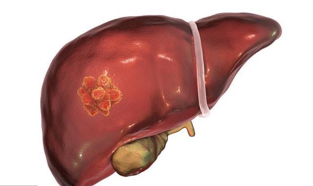 """身体有3大信号,说明肝早藏脏纳垢,给肝脏""""洗澡去污""""排毒养肝"""