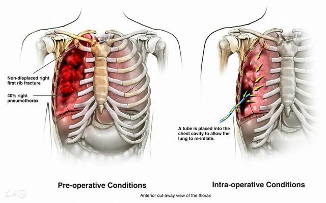 古时候肋骨断了会怎样治疗呢?