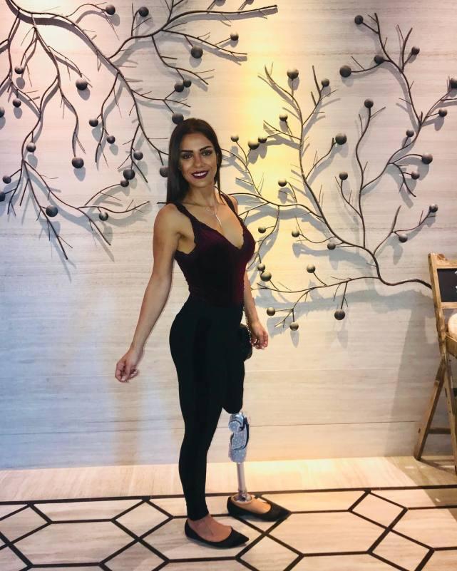 健身励志网红:骨癌截肢的她靠健身逆袭嫁入豪