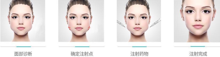 360水动力吸脂面部真的能瘦脸吗